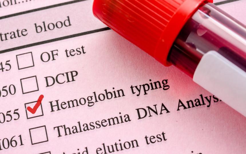Ką rodo bendras kraujo tyrimas ir kaip jam pasirengti